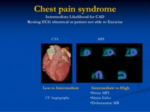 Chest pain syndrome