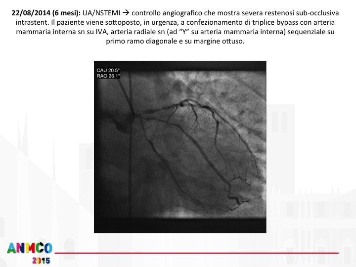 28. A distanza di 6 mesi il paziente ha un nuovo episodio di angor. Osservazione presso il PS del centro spoke. ECG Negativo ma troponina positiva. Diagnosi di NSTEMI. Attivata la rete per il pz NSTEMI (evoluzione della RETE STEMI). Trasferimento presso il centro HUB entro 6-12 ore in assenza di instabilità clinica-emodinamica-elettrica. Coronarografia di controllo entro 24 ore dal sintomo. Il paziente viene avviato rapidamente in cardiochirurgia. Come si evince molte criticità emergono nella gestione ordinaria della Rete STEMI:  Scelta della strategia riperfusiva (non dimenticando la fibrinolisi)  Scelta della terapia antiaggregante e anticoagulante  Scelta della strategia in sala di emodinamica: tromboaspirazione si-no. Stenting si o no in presenza di flusso TIMI 3 dopo fibrinolisi efficace  STENTING DES o BMS durante la seconda procedura  Attivazione di una eventuale RETE ECMO per il supporto emodinamico  Sviluppo della RETE NSTEMI con vari gradi di priorità nel trasferimento