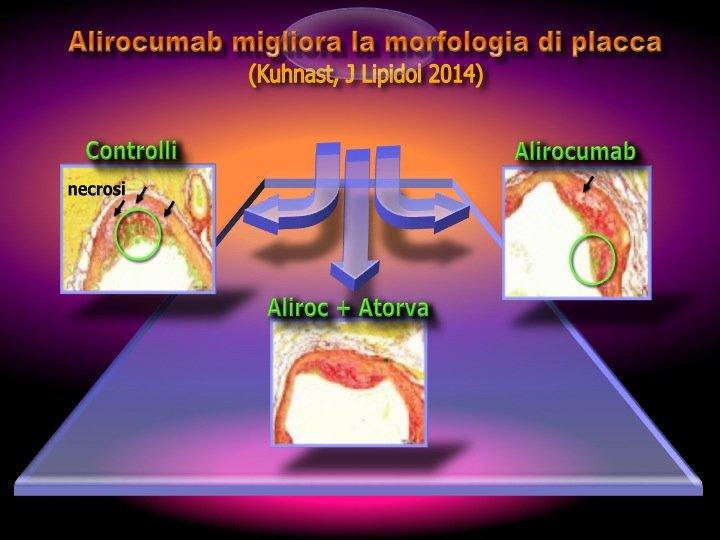 47. L'effetto dell'Alirocumab sulla placca non è solo di tipo quantitativo, ma anche qualitativo. I fenomeni necrotici (frecce nere) e l'infiltrato monocitario (cerchi verdi) sono nettamente ridotti dall'Alirocumab e ancor più dall'associazione Alirocumab + Atorvastatina.