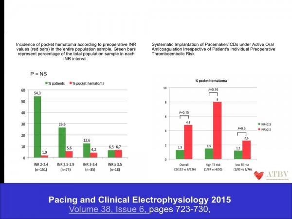 16. L'intervento… on Coumadin… non determinava un un significativo incremento delle complicanze emorragiche se l'INR perioperatorio veniva mantenuto < di 2,5.