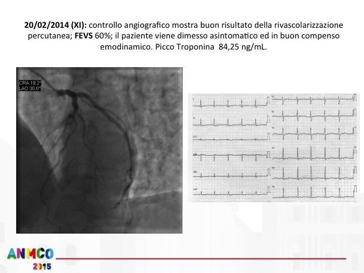 17. Il paziente viene quindi trasferito in degenza ordinaria e in XI giornata viene effettuata un'angiografia di controllo che documenta il buon risultato a distanza della rivascolarizzazione. Il paziente viene quindi dimesso nella stessa giornata in buon compenso emodinamico, con una FE ecocardiografica del 60% e senza deficit neurologici.