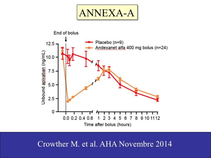 17. Ciononostante, anche l'antidoto di apixaban arriverà tra non molto, così come quello di altri NAO (Si veda: https://atbv.it/lantidoto-ce/ ).